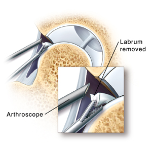Cross section of hip joint showing arthroscopic instruments removing loose part of labrum. Closeup of arthroscope tip in hip joint and instrument removing part of labrum.
