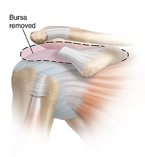 Front view of shoulder joint showing inflamed bursa being removed.