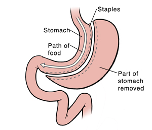 Front view of stomach and duodenum showing sleeve gastrectomy. Arrow shows path of food.