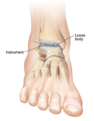Closeup of instrument removing loose body from ankle joint.