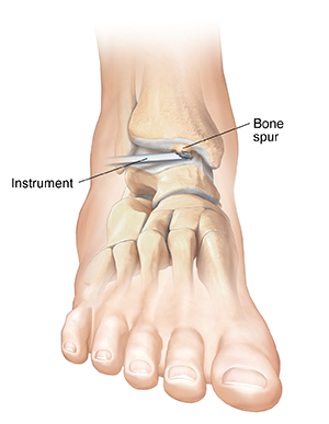 Front view of foot with instrument removing bone spur on ankle bone.