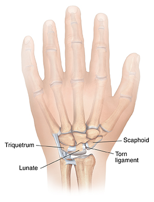 Back view of hand showing torn ligament in wrist.