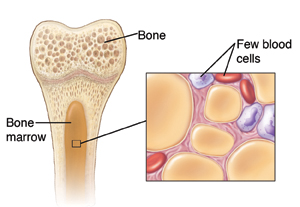 Cross-section of bone showing marrow and inset of marrow with aplastic anemia.