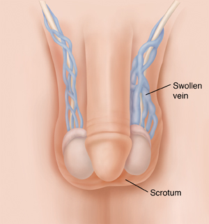 Front view of penis and testicles showing varicocele.