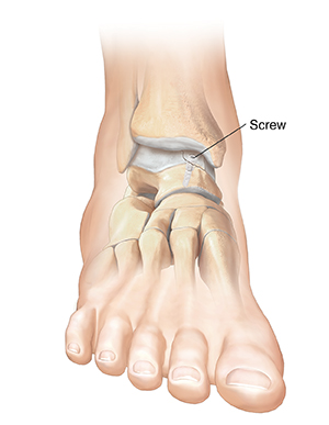 Front view of foot showing screw holding cartilage in place on ankle bone.