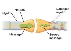 Closeup of synapse where two neurons meet. Arrows show message moving through healthy neuron and being disrupted in damaged neuron.