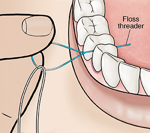 Closeup of fingers inserting floss between teeth with floss threader.