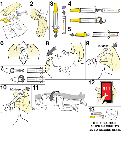 Thirteen steps in giving an emergency dose of naloxone.