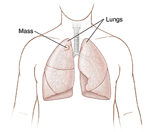 Front view of chest showing lungs with mass on right lung.